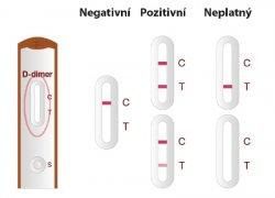 Quick D–dimer postup měření 3
