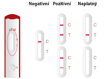 Troponin I - postup měření 3